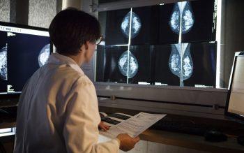 190220-mammogram-x-ray-cs-255p_eaab08a3015a54db1e58729714acea42_fit-2000w_crop1559427757191.jpg_2053140500